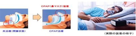 ContinuousPositiveAirwayPressure:持続陽圧呼吸法
